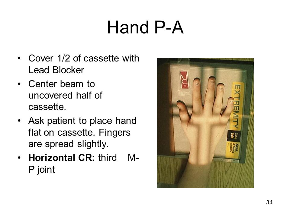 Hand P-A Cover 1/2 of cassette with Lead Blocker