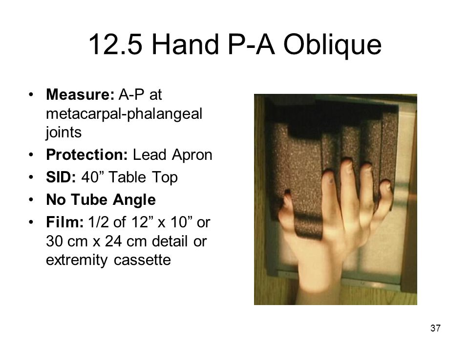 12.5 Hand P-A Oblique Measure: A-P at metacarpal-phalangeal joints