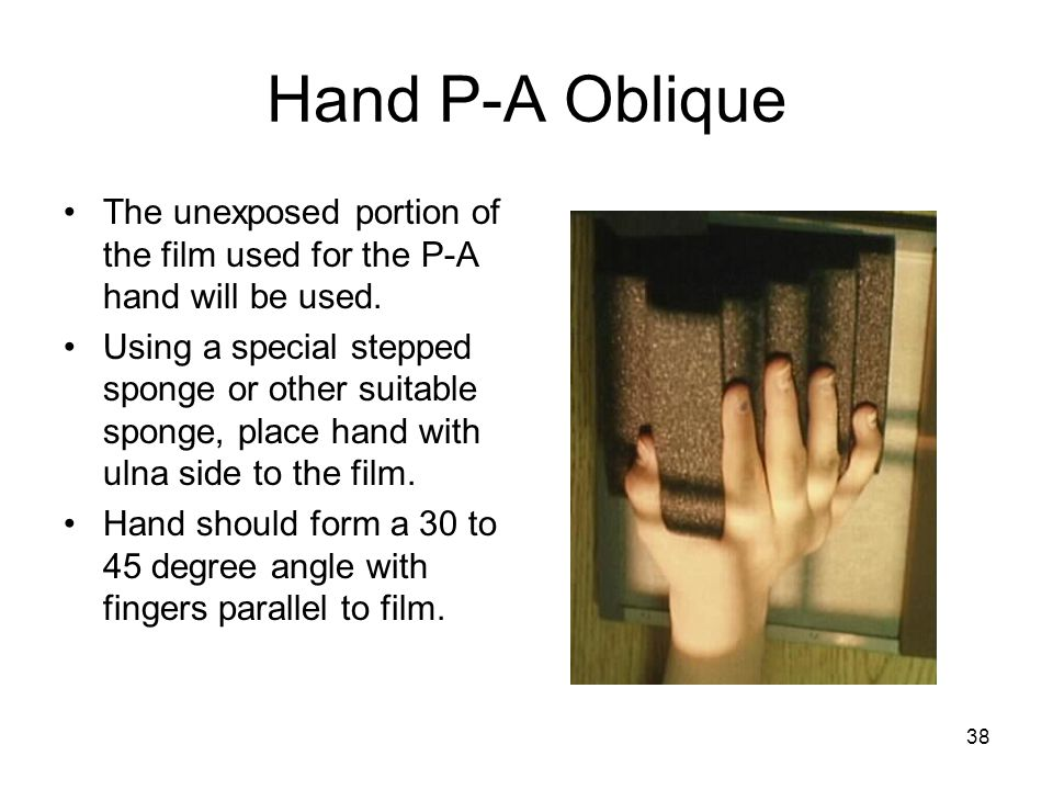 Hand P-A Oblique The unexposed portion of the film used for the P-A hand will be used.