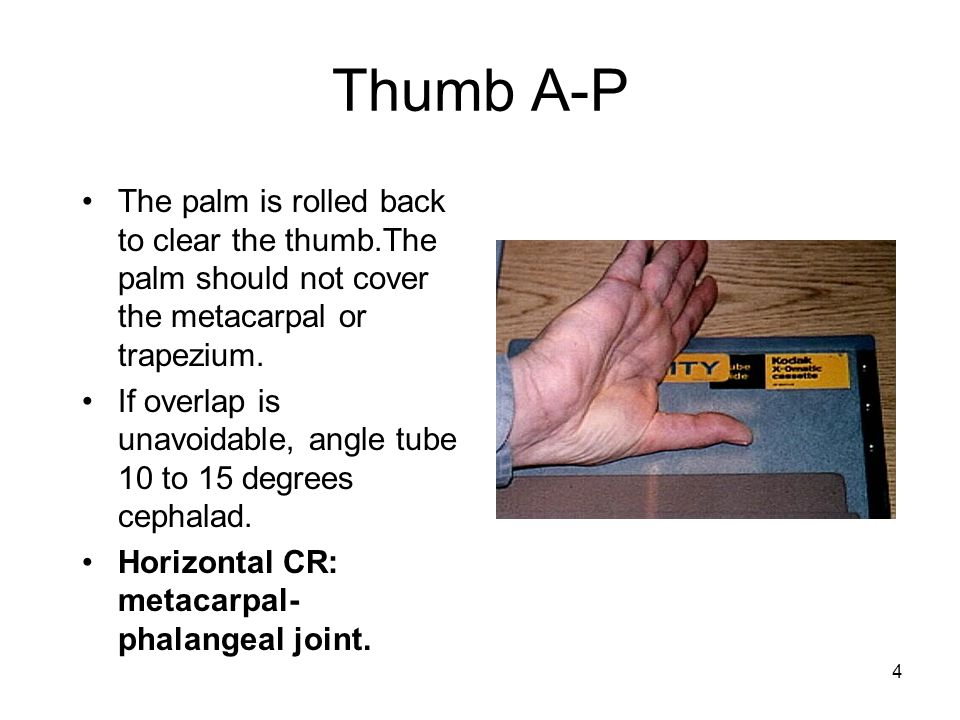 Thumb A-P The palm is rolled back to clear the thumb.The palm should not cover the metacarpal or trapezium.