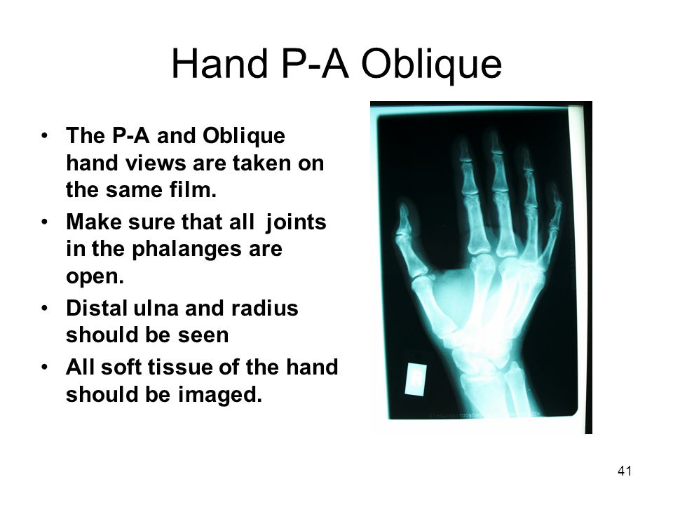 Hand P-A Oblique The P-A and Oblique hand views are taken on the same film. Make sure that all joints in the phalanges are open.