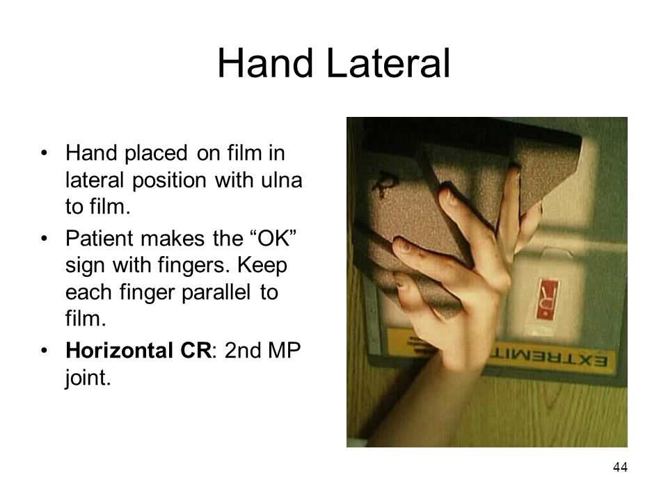 Hand Lateral Hand placed on film in lateral position with ulna to film. Patient makes the OK sign with fingers. Keep each finger parallel to film.