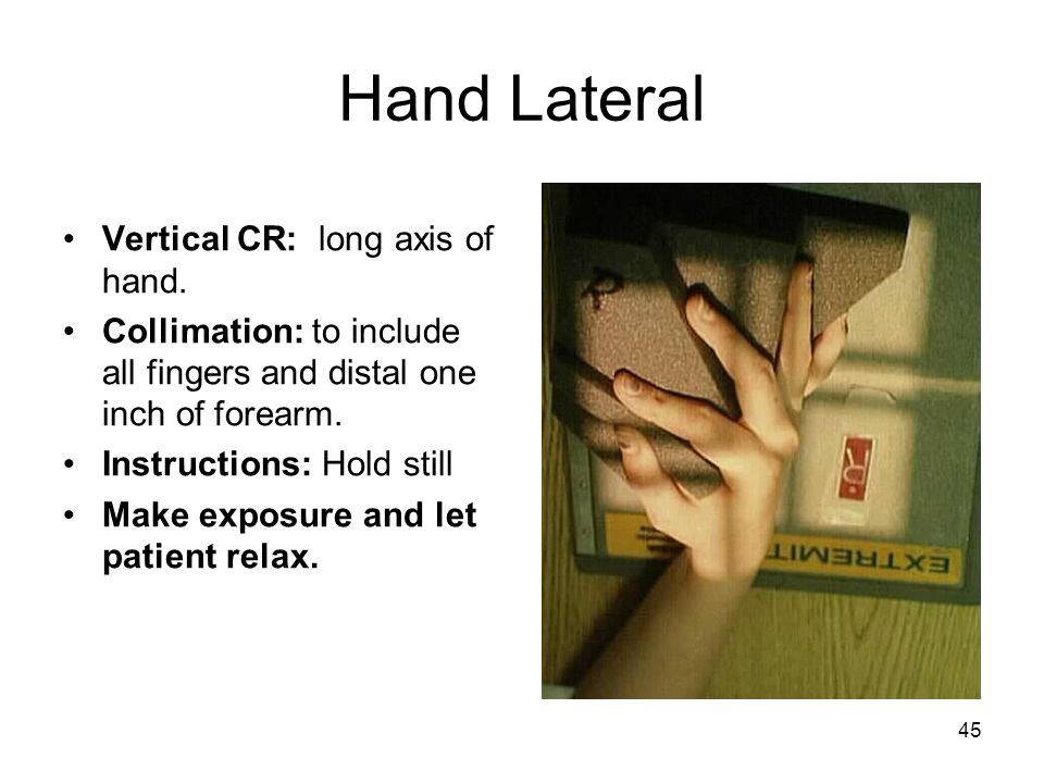 Hand Lateral Vertical CR: long axis of hand.