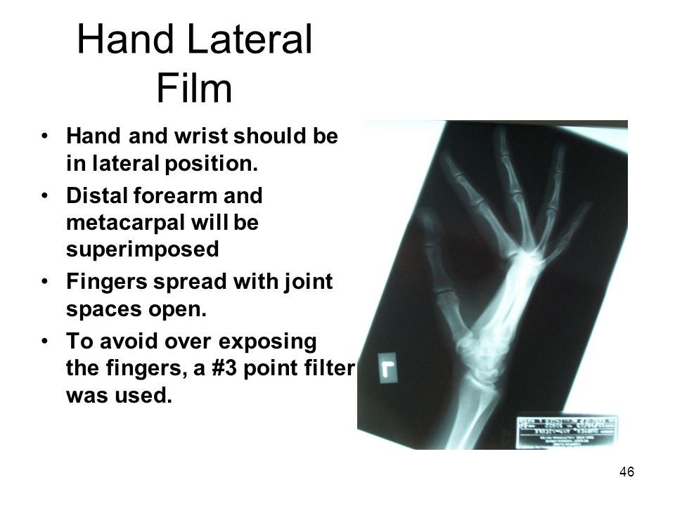 Hand Lateral Film Hand and wrist should be in lateral position.
