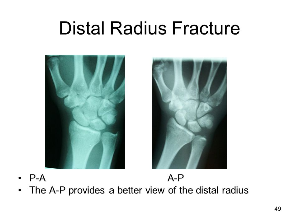 Distal Radius Fracture