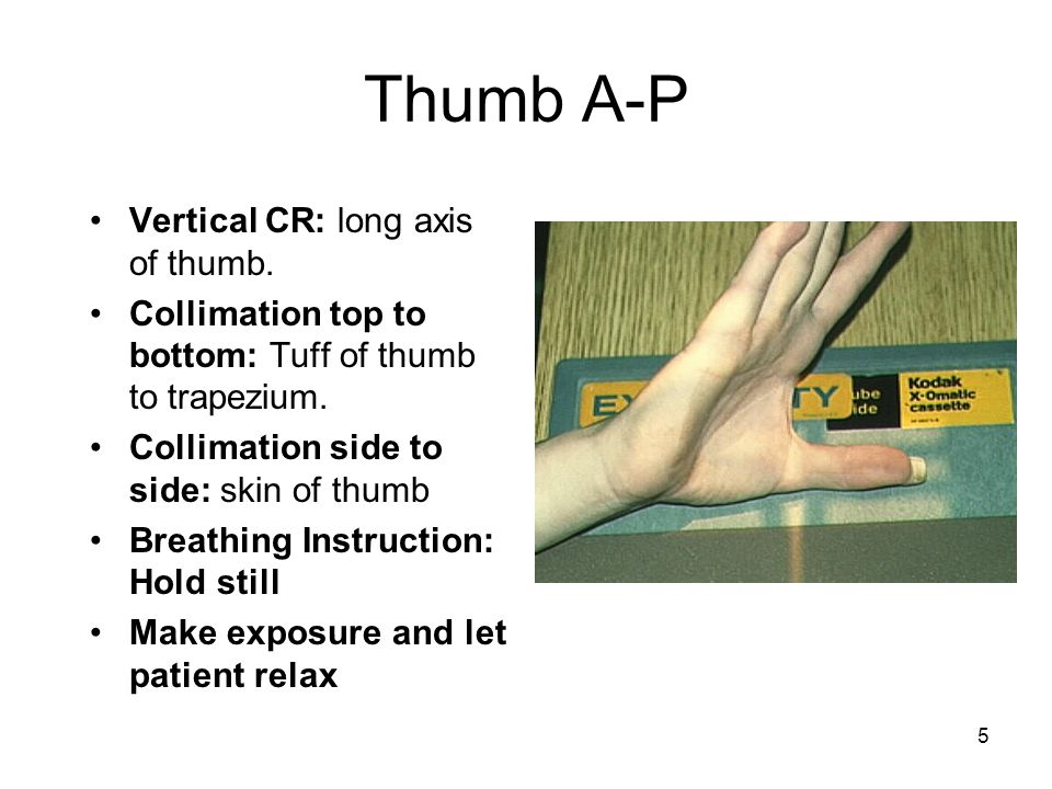 Thumb A-P Vertical CR: long axis of thumb.