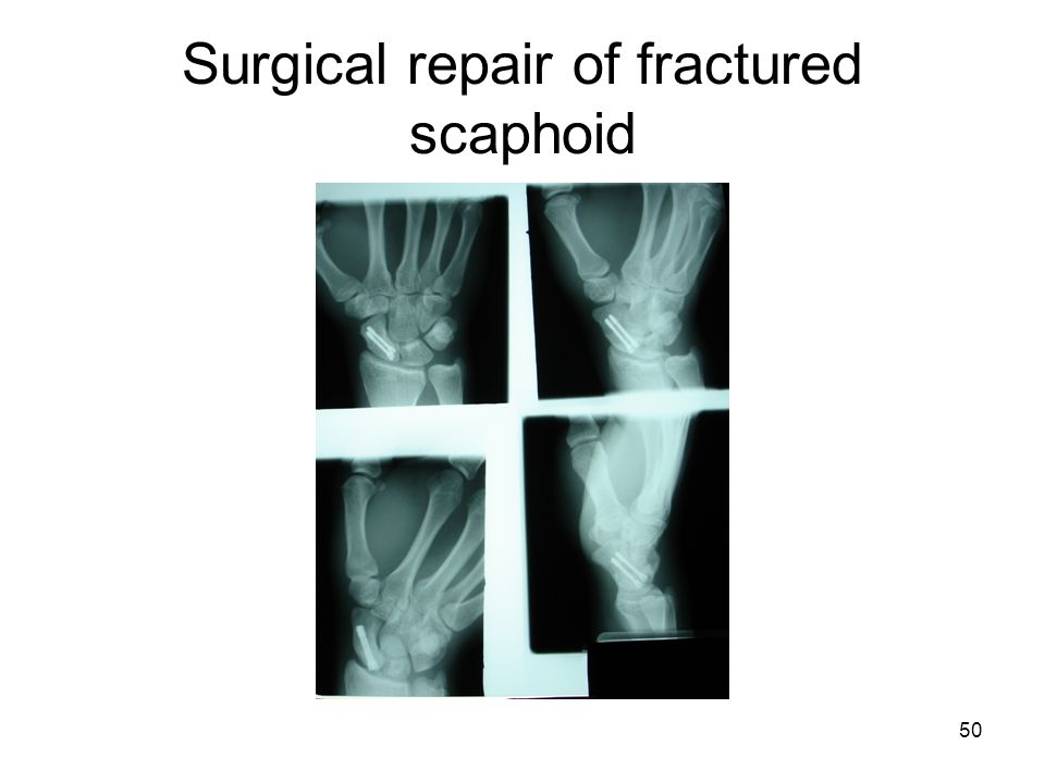Surgical repair of fractured scaphoid