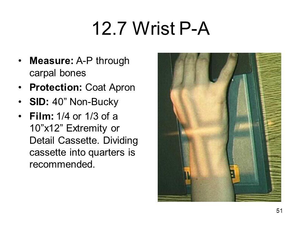 12.7 Wrist P-A Measure: A-P through carpal bones