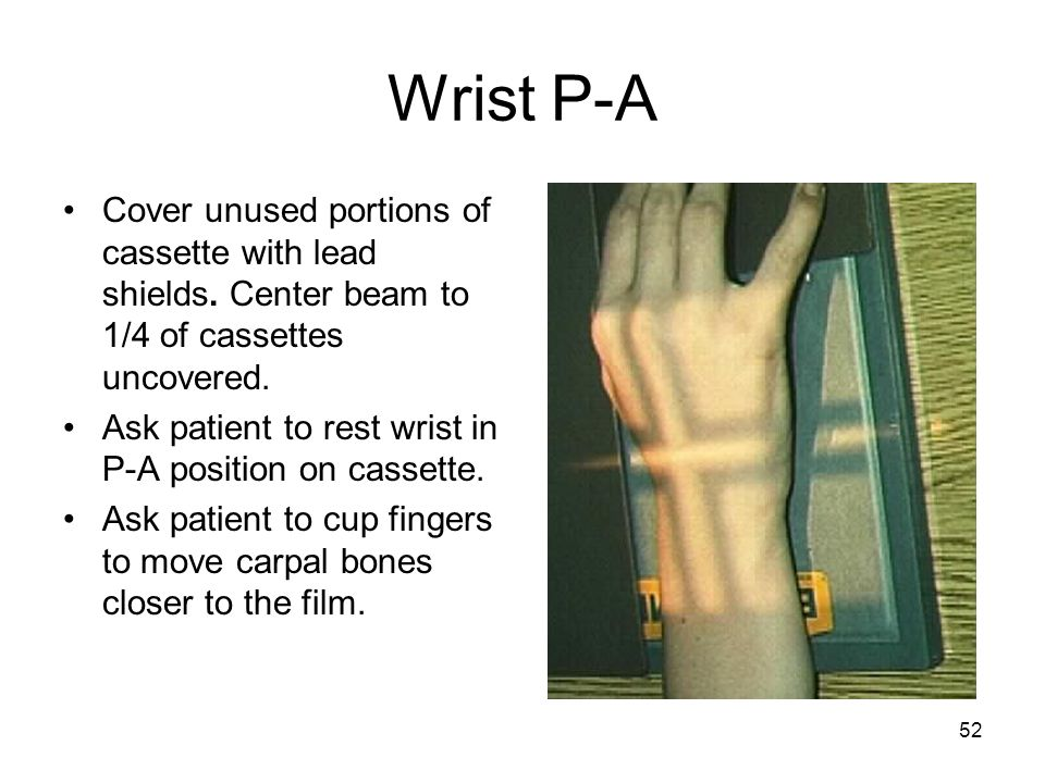 Wrist P-A Cover unused portions of cassette with lead shields. Center beam to 1/4 of cassettes uncovered.