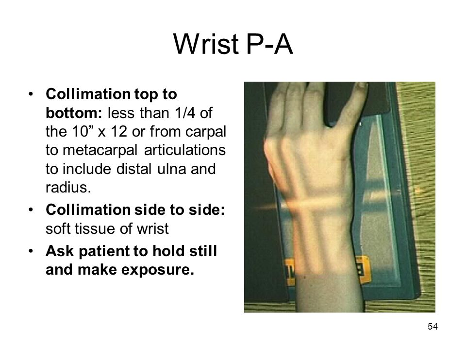 Wrist P-A Collimation top to bottom: less than 1/4 of the 10 x 12 or from carpal to metacarpal articulations to include distal ulna and radius.