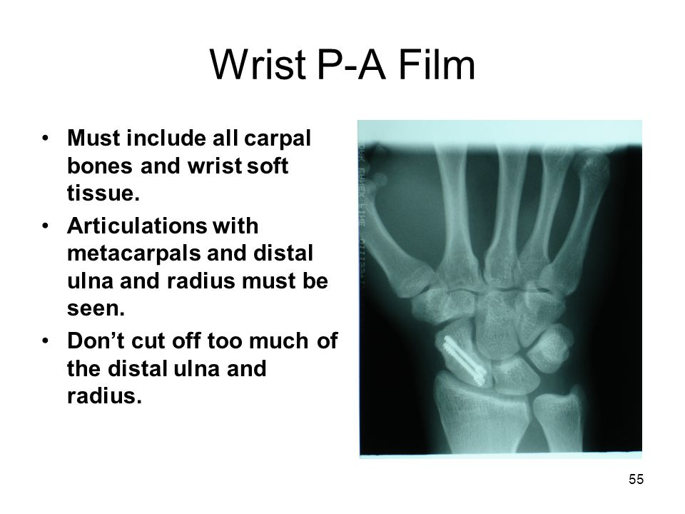 Wrist P-A Film Must include all carpal bones and wrist soft tissue.