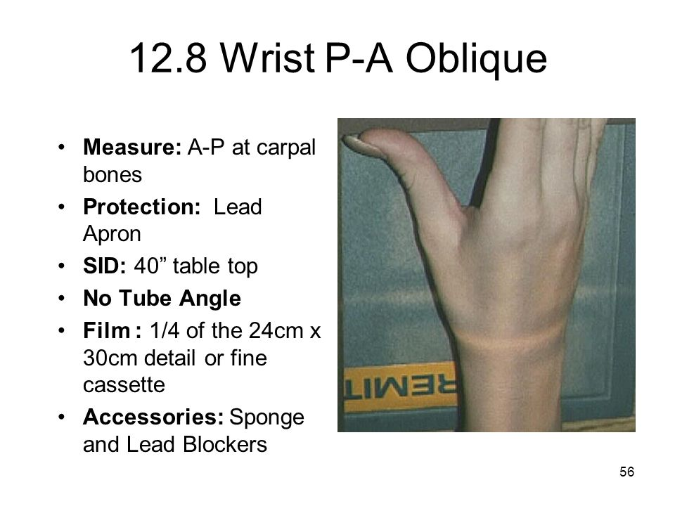 12.8 Wrist P-A Oblique Measure: A-P at carpal bones