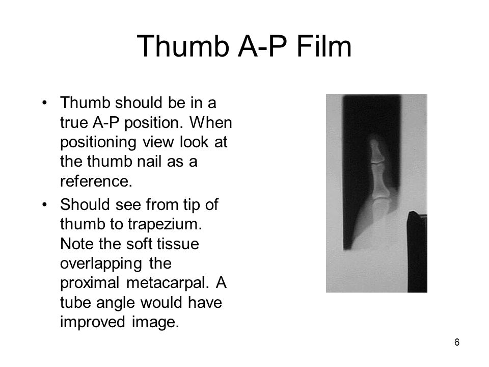 Thumb A-P Film Thumb should be in a true A-P position. When positioning view look at the thumb nail as a reference.