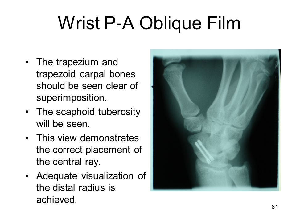Wrist P-A Oblique Film The trapezium and trapezoid carpal bones should be seen clear of superimposition.