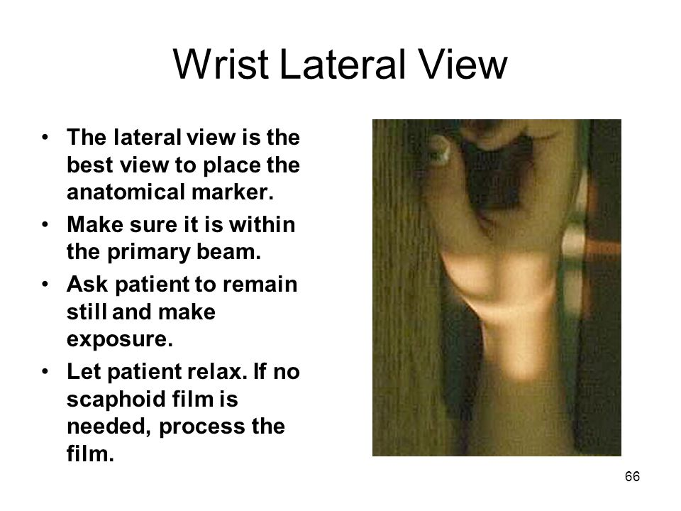 Wrist Lateral View The lateral view is the best view to place the anatomical marker. Make sure it is within the primary beam.