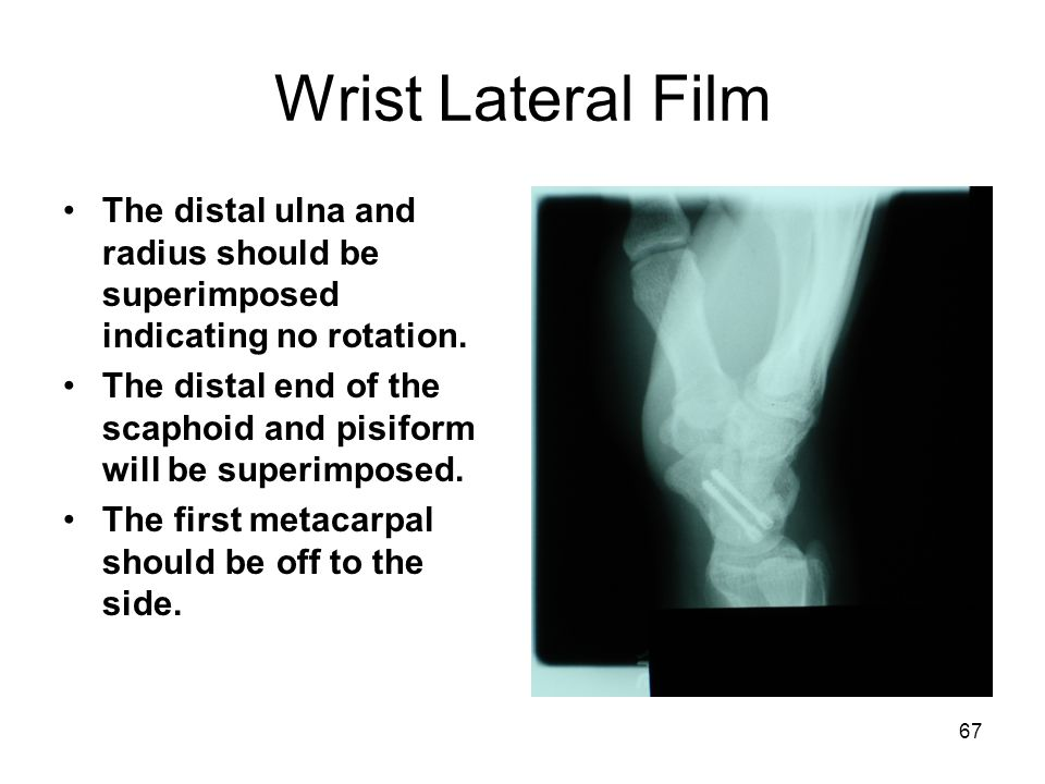 Wrist Lateral Film The distal ulna and radius should be superimposed indicating no rotation.