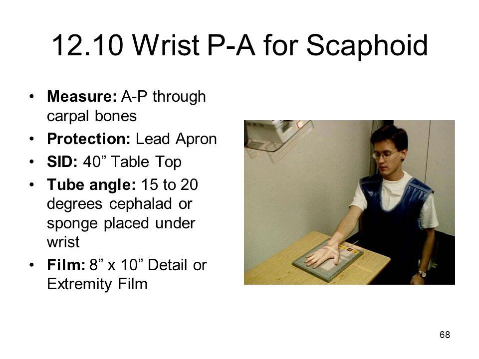 12.10 Wrist P-A for Scaphoid Measure: A-P through carpal bones