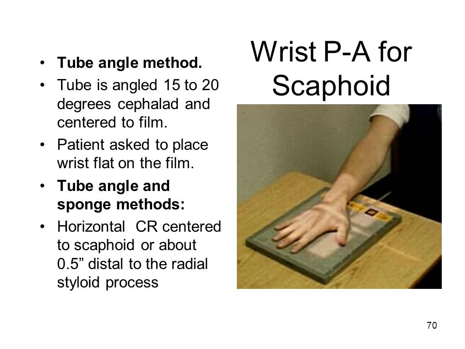Wrist P-A for Scaphoid Tube angle method.