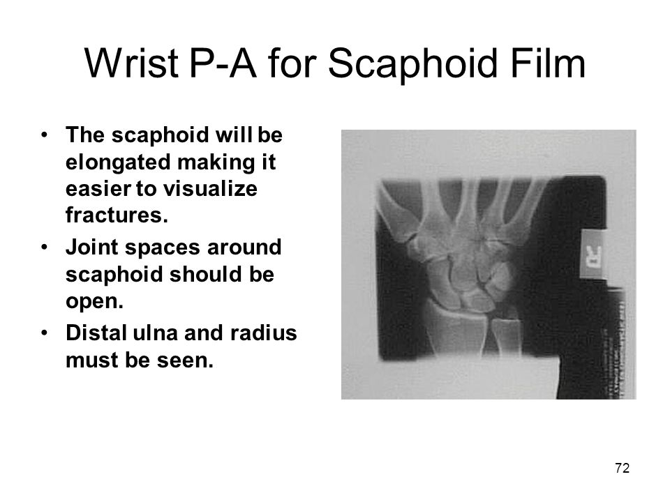 Wrist P-A for Scaphoid Film