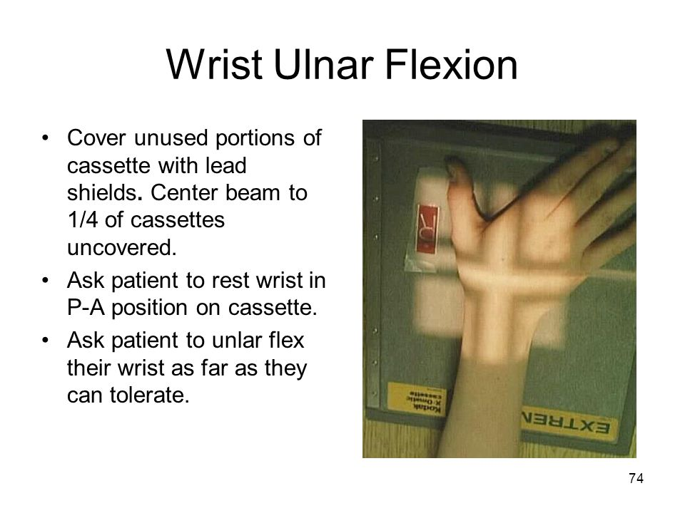 Wrist Ulnar Flexion Cover unused portions of cassette with lead shields. Center beam to 1/4 of cassettes uncovered.