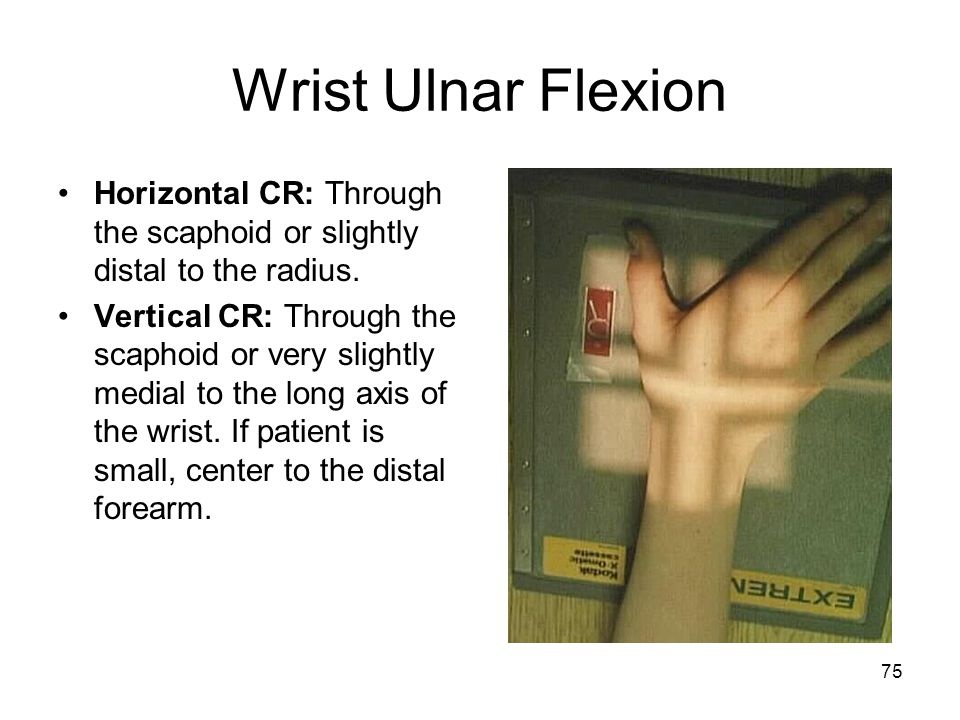 Wrist Ulnar Flexion Horizontal CR: Through the scaphoid or slightly distal to the radius.