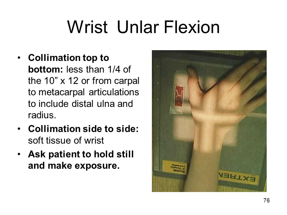 Wrist Unlar Flexion