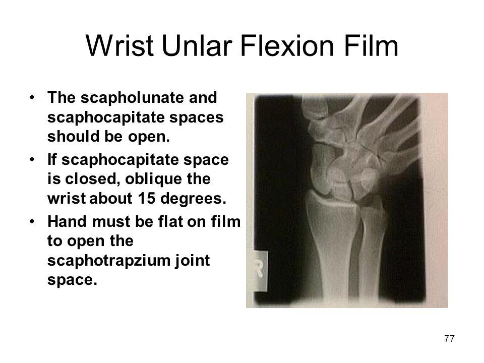 Wrist Unlar Flexion Film