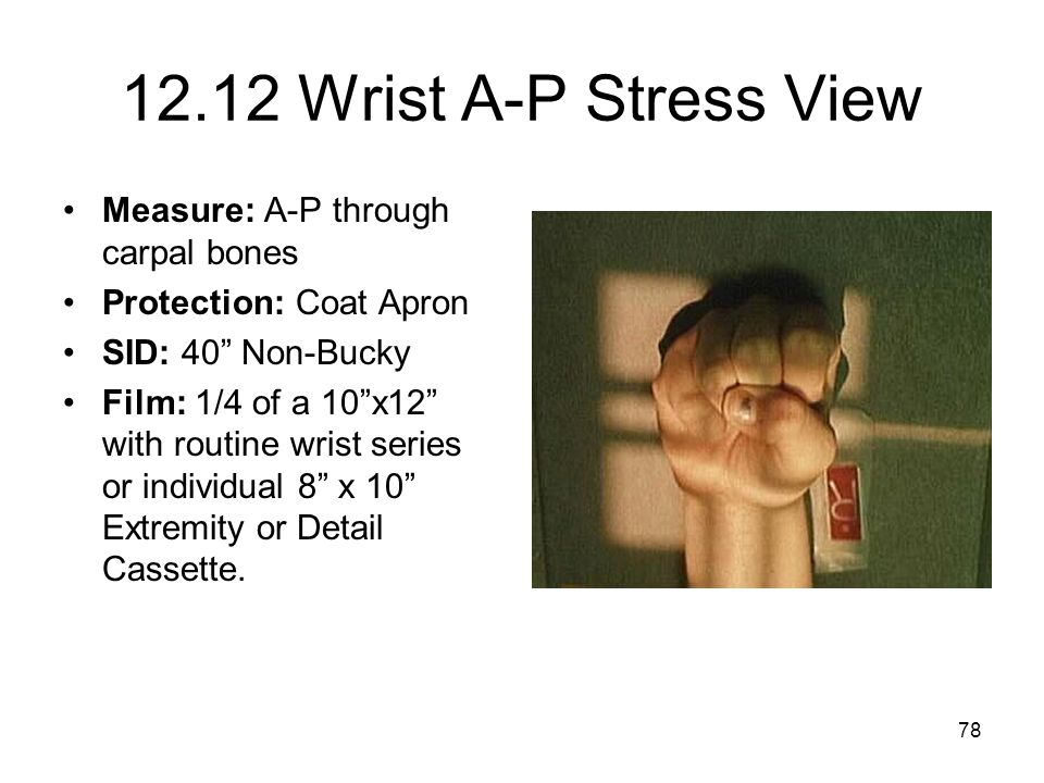 12.12 Wrist A-P Stress View Measure: A-P through carpal bones