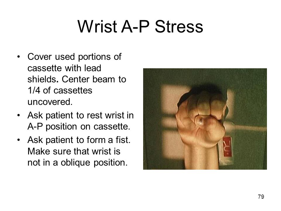 Wrist A-P Stress Cover used portions of cassette with lead shields. Center beam to 1/4 of cassettes uncovered.