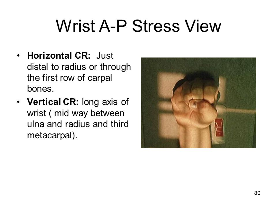 Wrist A-P Stress View Horizontal CR: Just distal to radius or through the first row of carpal bones.