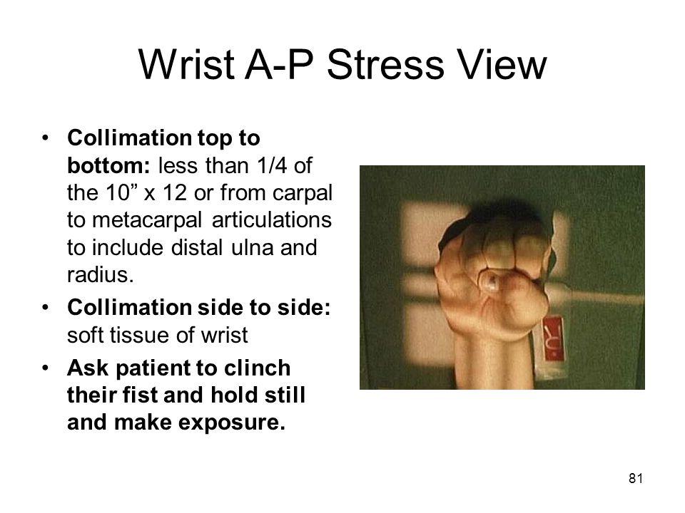 Wrist A-P Stress View