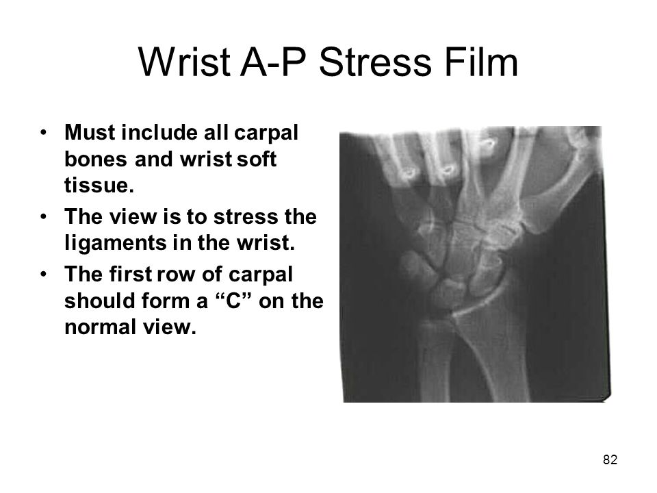 Wrist A-P Stress Film Must include all carpal bones and wrist soft tissue. The view is to stress the ligaments in the wrist.