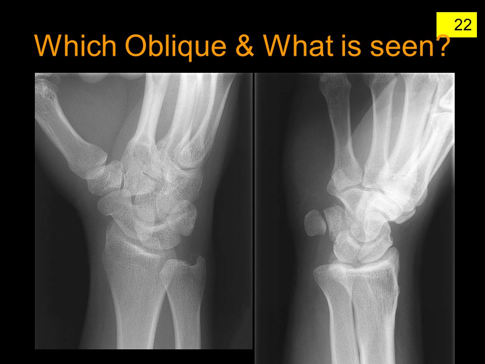 Which Oblique & What is seen
