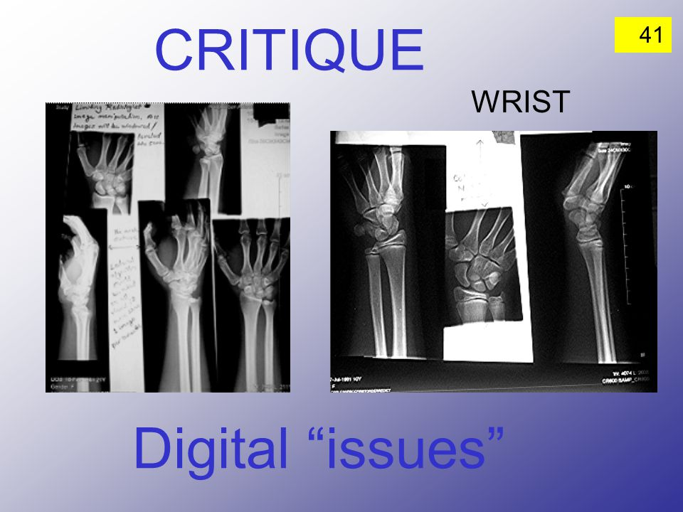 CRITIQUE WRIST Digital issues