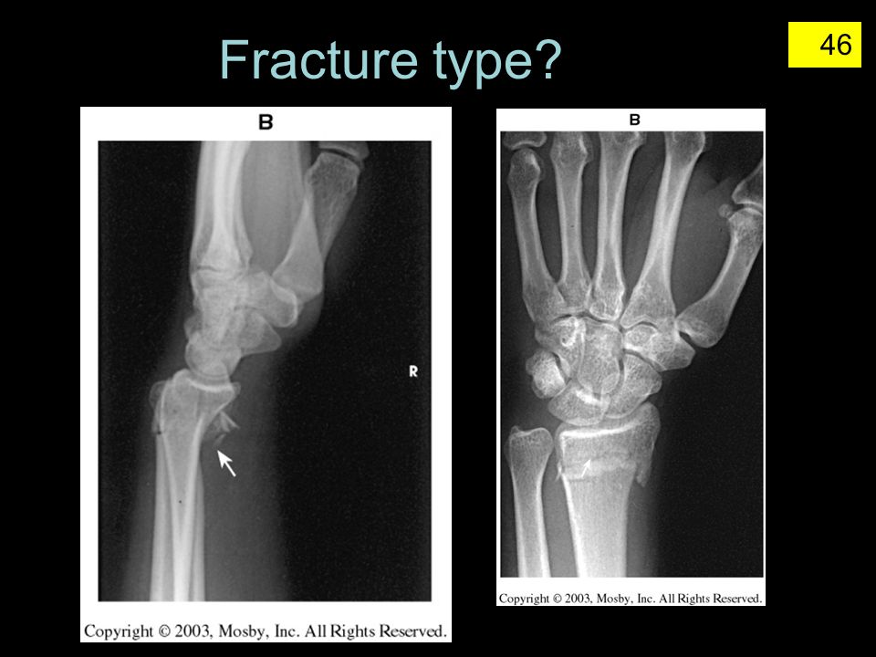 Fracture type