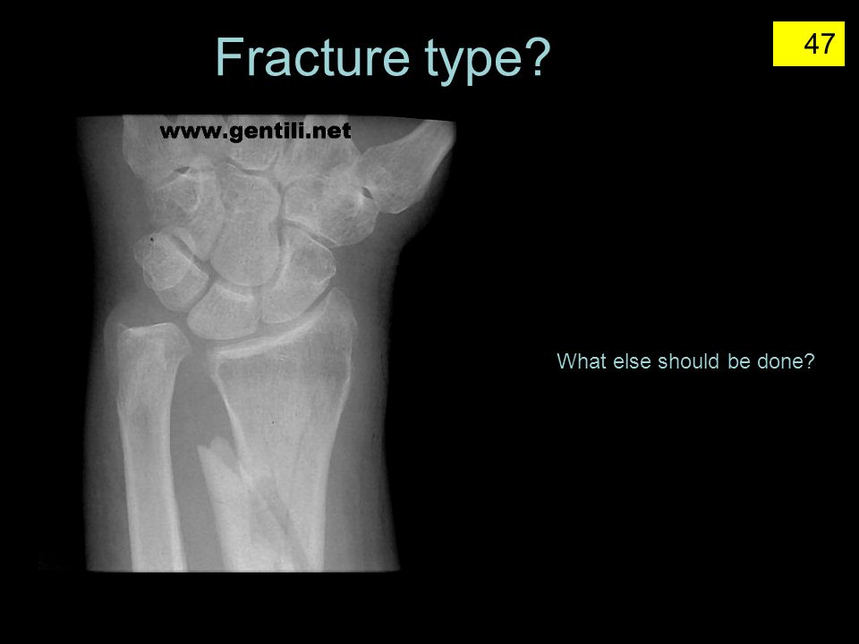 Fracture type What else should be done