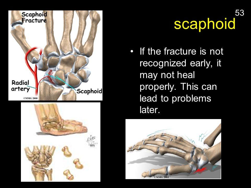 scaphoid If the fracture is not recognized early, it may not heal properly. This can lead to problems later.
