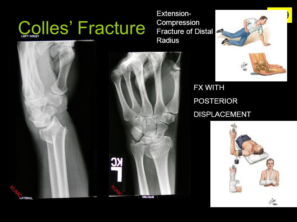 Colles' Fracture Extension-Compression Fracture of Distal Radius
