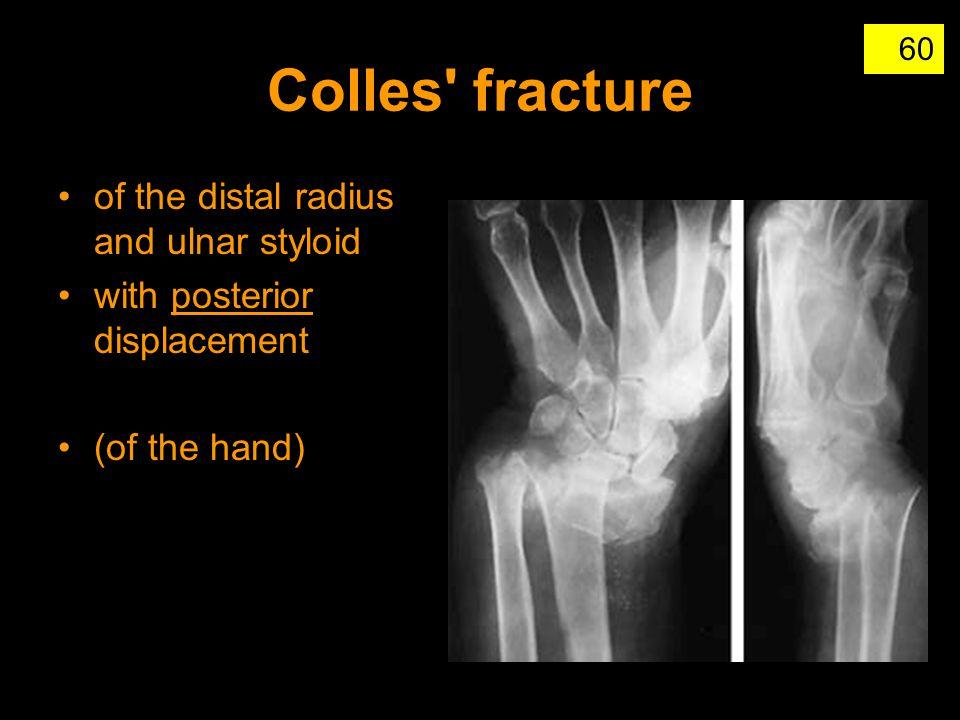 Colles fracture of the distal radius and ulnar styloid
