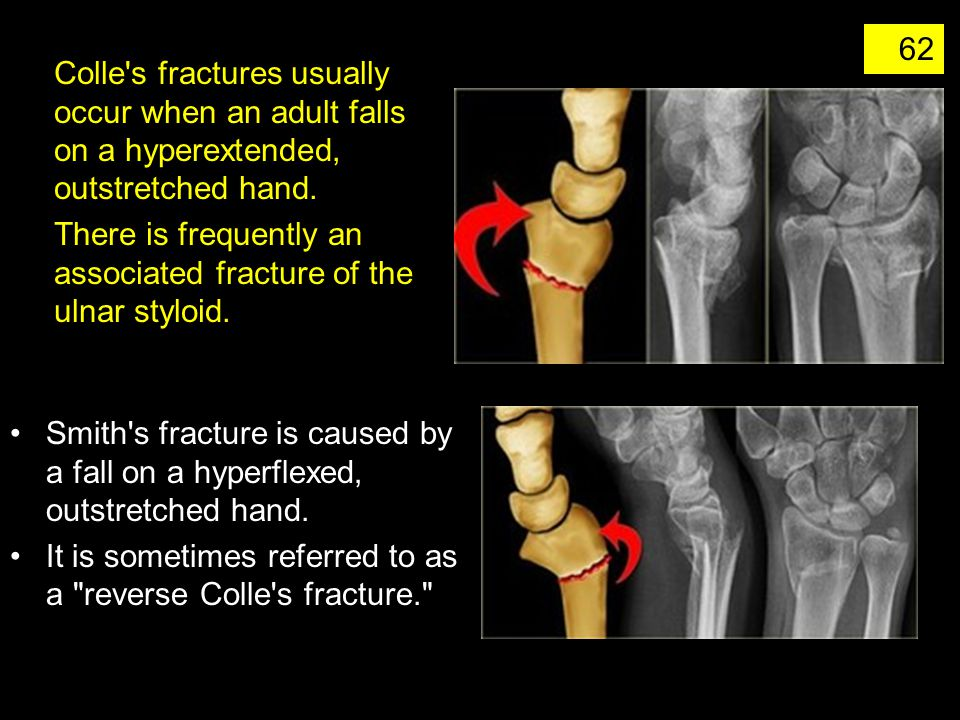 Colle s fractures usually occur when an adult falls on a hyperextended, outstretched hand.