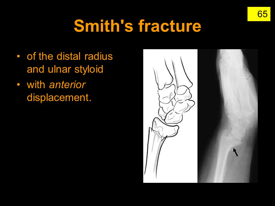 Smith s fracture of the distal radius and ulnar styloid