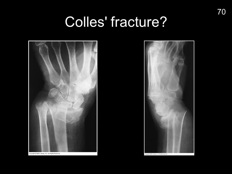 Colles fracture 70