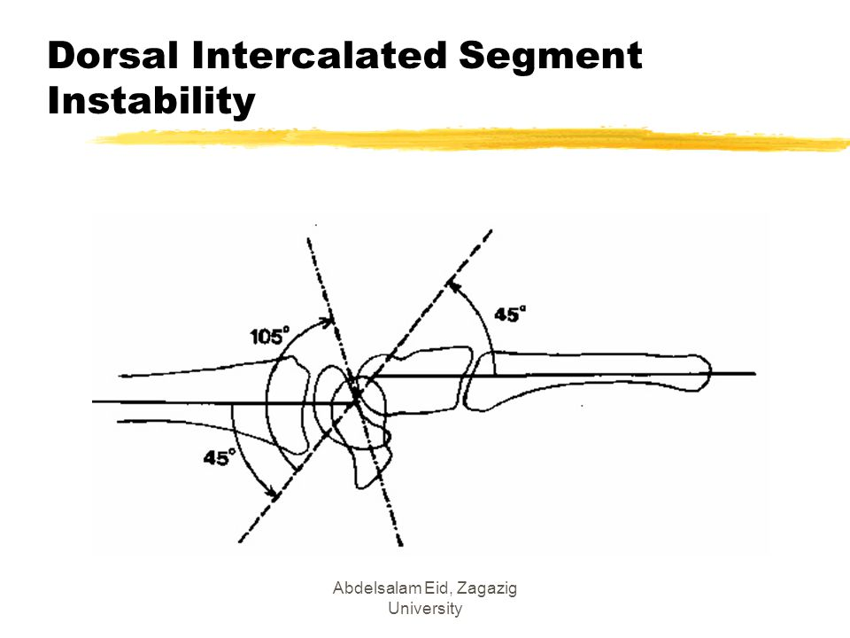 Dorsal Intercalated Segment Instability