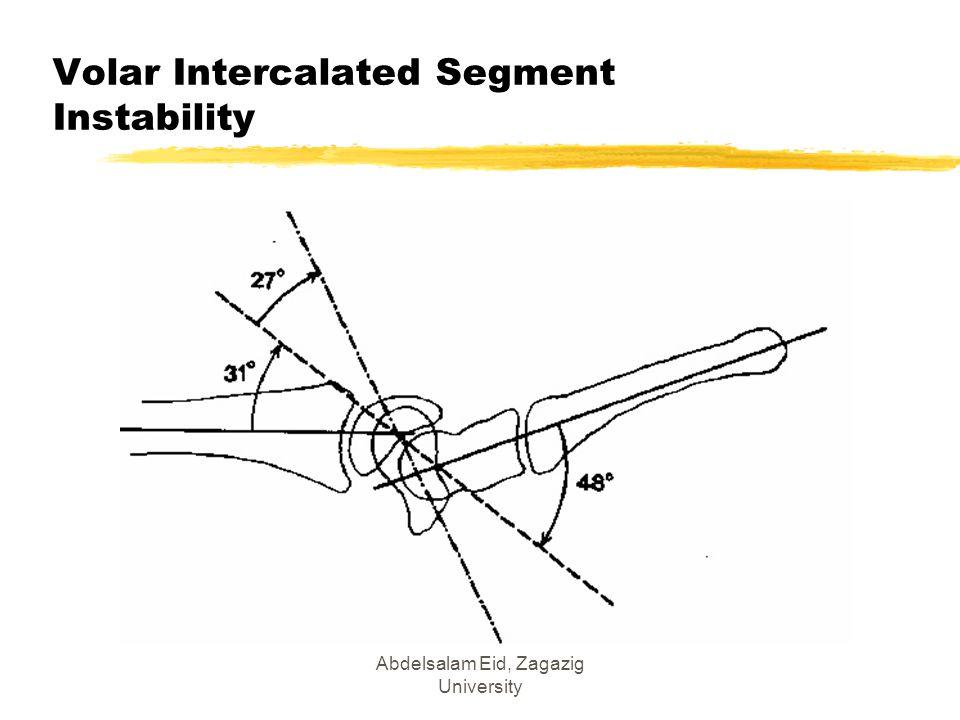 Volar Intercalated Segment Instability