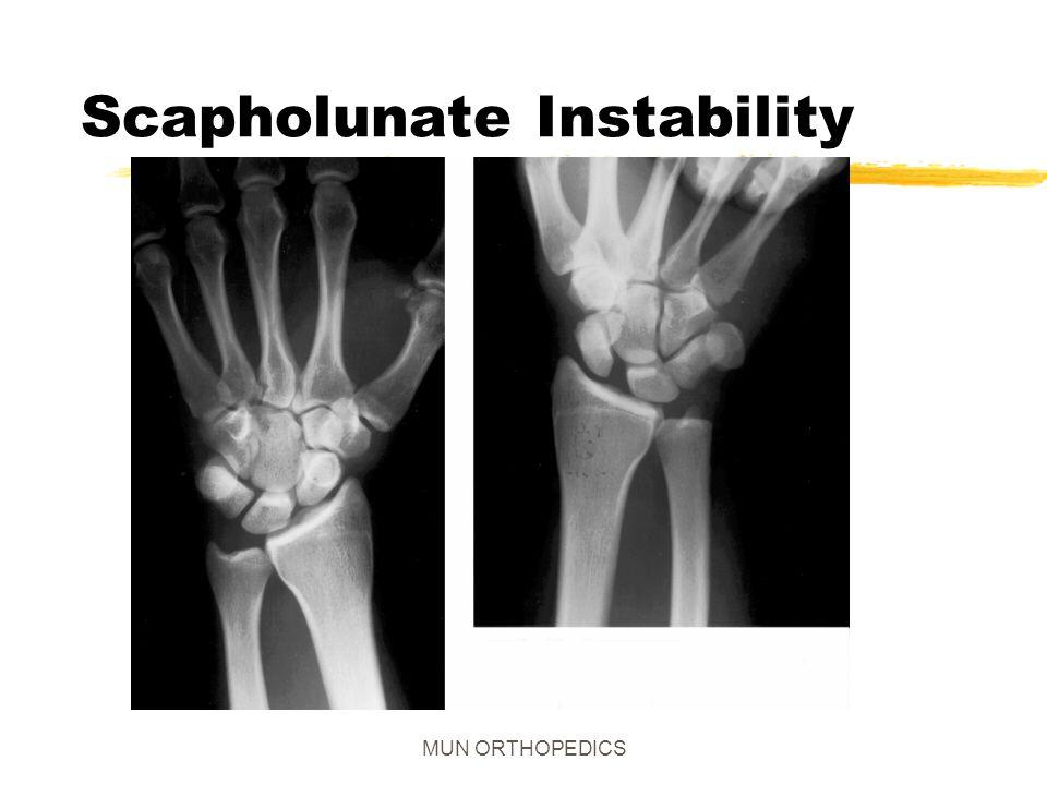 Scapholunate Instability