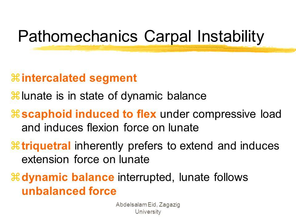 Pathomechanics Carpal Instability
