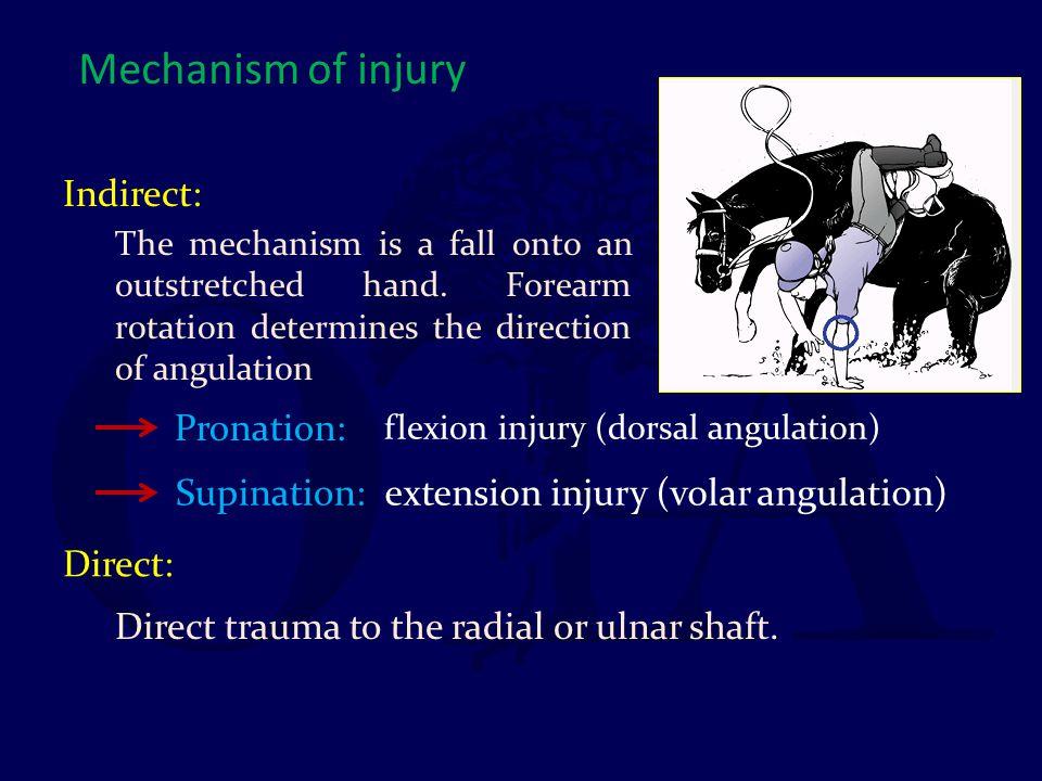 Mechanism of injury Indirect: Pronation: Supination: