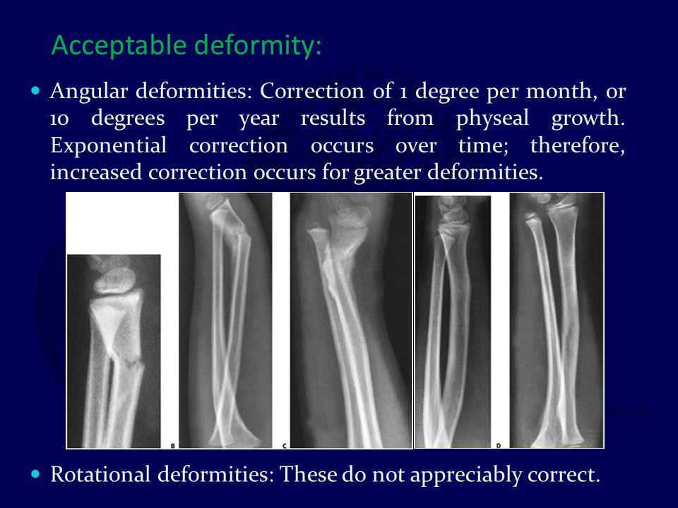 Acceptable deformity:
