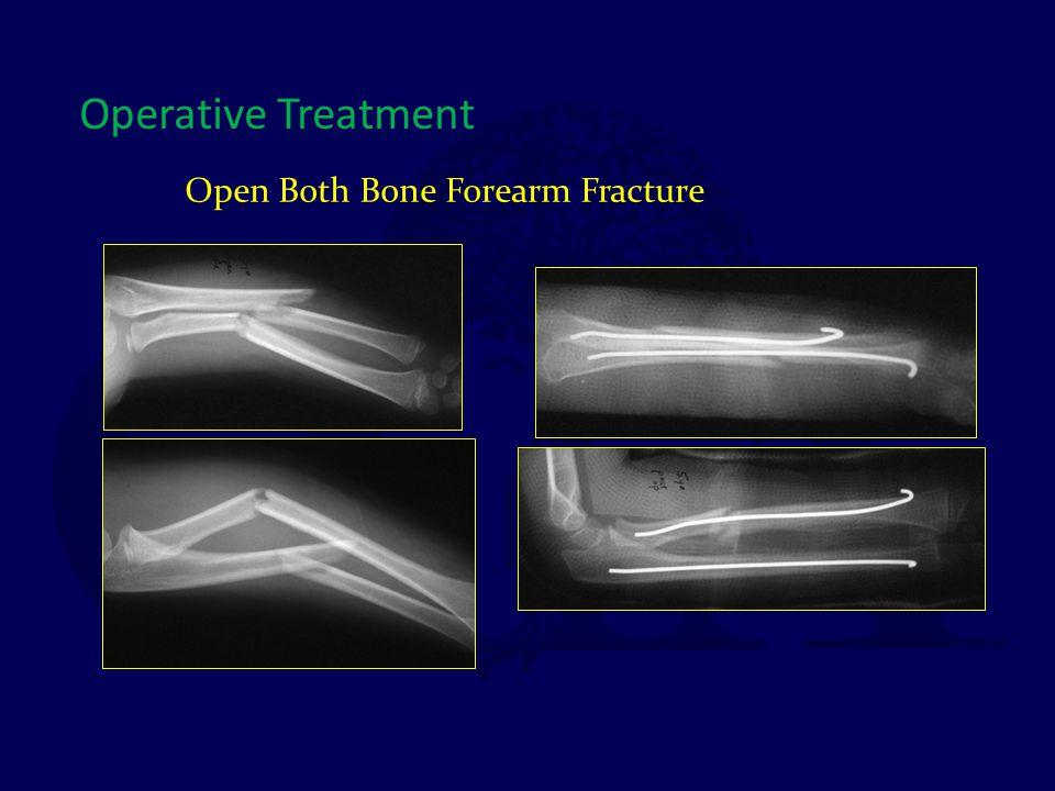 Open Both Bone Forearm Fracture