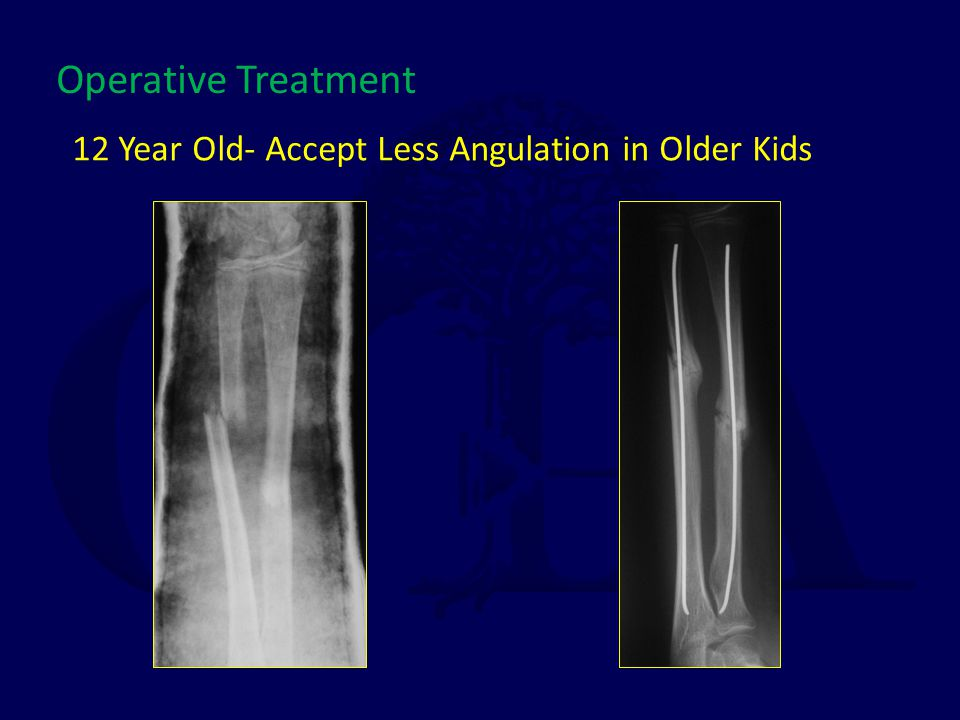 12 Year Old- Accept Less Angulation in Older Kids